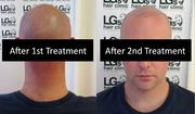 Baldness Cure In Birmingham