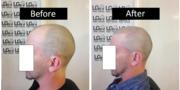 Bald Treatment In Birmingham