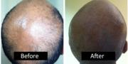Receding Hairline Treatment In Birmingham