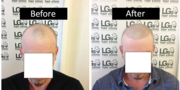 Charges For Hair Loss Treatment