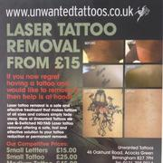 Tattoo Removal Without Pain In Birmingham