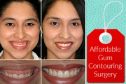 Experienced Cosmetic Dentist in Birmingham for Gum Contouring Surgery