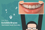 Ease and comfort of Invisible Braces in Birmingham